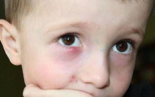 Шишка на веке глаза — причины, лечение и профилактика