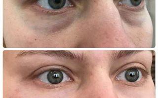 Бадяга от синяков под глазами — как правильно пользоваться?