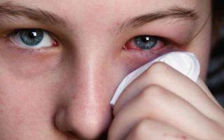 Как передается конъюнктивит — пути заражения, симптомы и лечение