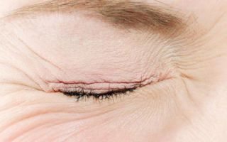 Как правильно закапывать капли в глаза — подробная инструкция!