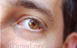 Почему лопаются капилляры в глазах — причины и лечение!
