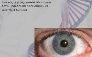 Гетерохромия глаз у людей — что это, причины появления и лечение