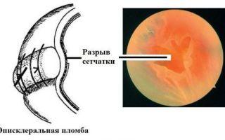 Сетчатка глаза — болезни и лечение, профилактика