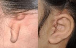 Атрезия слухового прохода: причины и способы лечения