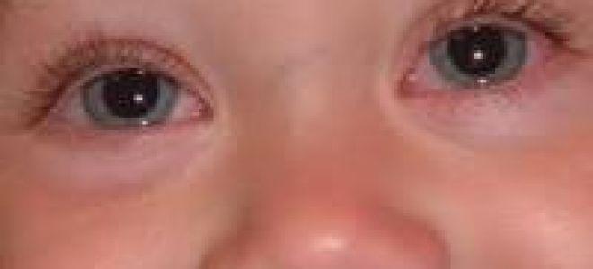 Аллергический конъюнктивит у ребенка — симптомы и методы лечения!