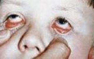 Аденовирусный конъюнктивит — симптомы и лечение, профилактика