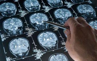 Болит правый глаз и правая сторона головы — причины и лечение