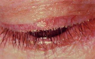 Блефарит — что это такое, симптомы и лечение, профилактика