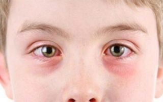Вирусный конъюнктивит — лечение и меры профилактики