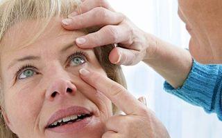 Признаки конъюнктивита у взрослых — все, о чем нужно знать!