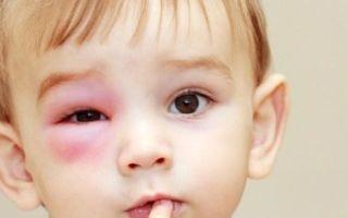 Что такое ячмень на глазу — причины, симптомы, лечение и профилактика
