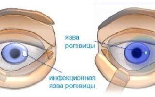 Гидрокортизон мазь — для чего применяется, показания и инструкция