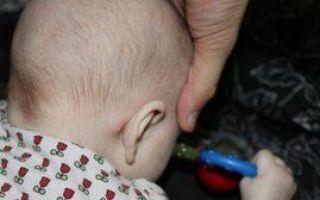 У ребенка шишка за ухом: причины появления