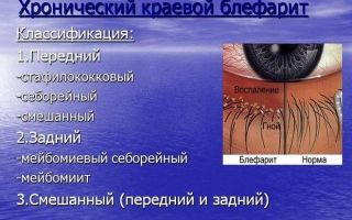 Глазные капли Вигамокс: описание, состав, применение, побочные действия