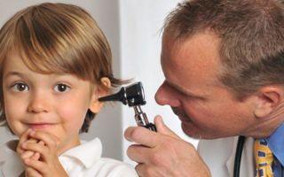 Катаральный отит у детей и взрослых: симптомы и лечение