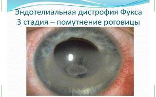 Помутнение роговицы глаза — лечение и профилактика
