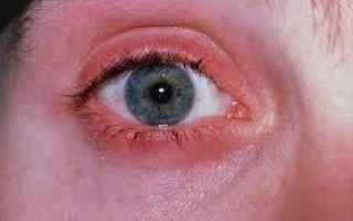 Красные веки глаз: причины у взрослого человека, лечение и профилактика