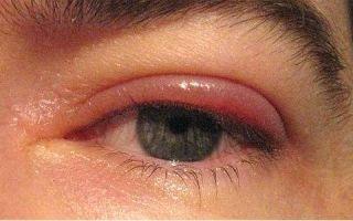 Чешутся веки глаз — причины, лечение и профилактика