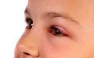 Халязион верхнего века у ребенка — симптомы, лечение и профилактика