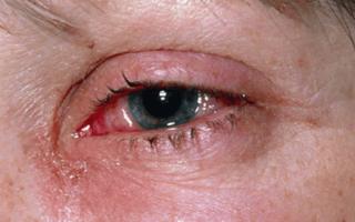 Лечение вторичной катаракты после замены хрусталика — методы, этапы
