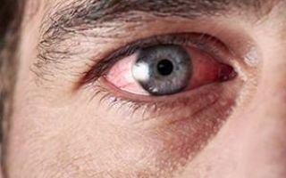 Ощущение пленки на глазу — причины, лечение и профилактика!