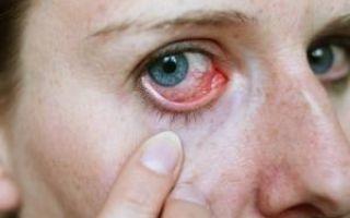 Как убрать соринку из глаза — проверенные способы и профилактика!