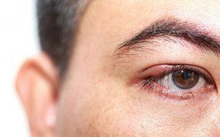 Чирей на глазу — причины появления, лечение и профилактика