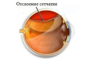 Симптомы отслойки сетчатки глаза у детей и взрослых