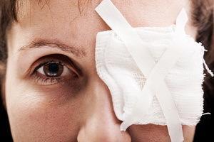 Лечение вторичной катаракты после замены хрусталика - методы, этапы