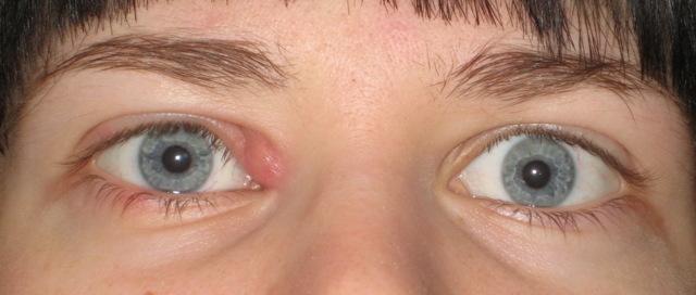 Болит глаз под верхним веком больно нажимать: причины и лечение