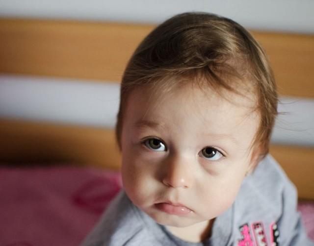 Почему у ребенка синяки под глазами - причины и лечение!