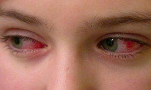 Глазные капли Ципрофлоксацин: описание, применение, противопоказания
