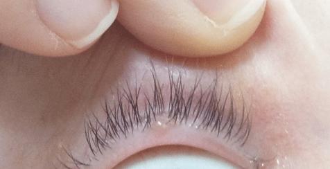 Шишка на веке глаза - причины, лечение и профилактика
