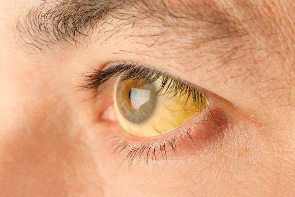 Желтое на глазу как называется