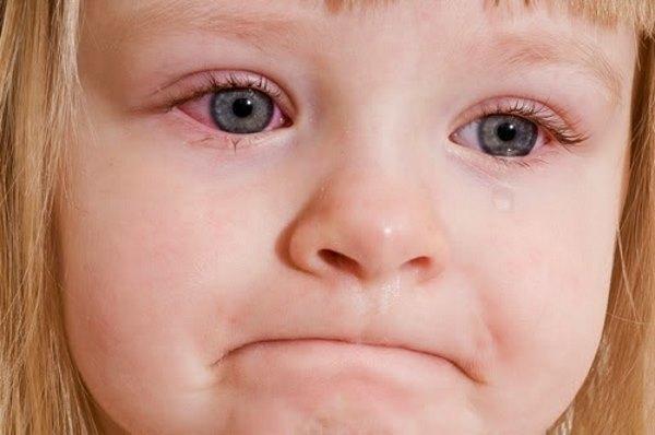 Детский конъюнктивит - чем лечить? Ищите ответ здесь!