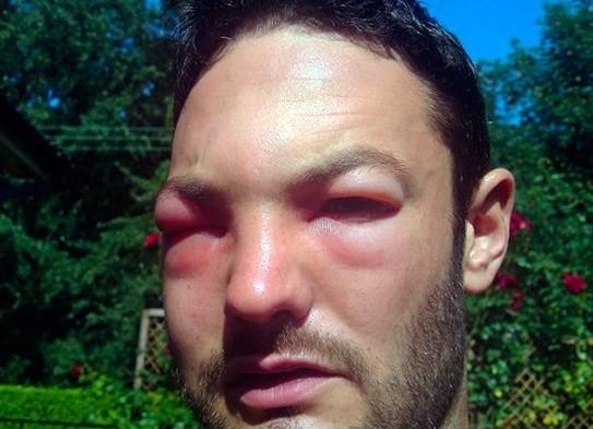 Попала мошка в глаз: как вытащить насекомое и чего делать нельзя?