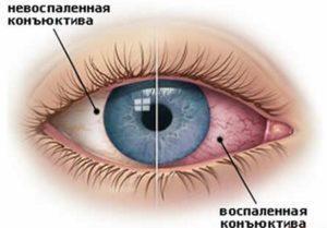 Как правильно ухаживать за контактными линзами для глаз?