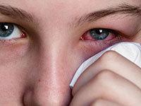 Как лечить аллергию на глазах - лучшие препараты и народные средства!