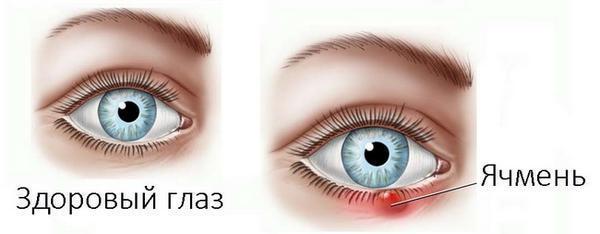Болит глаз изнутри: симптомы, лечение и профилактика