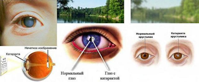 Как лечить катаракту: методы лечения, осложнения и причины появления