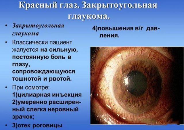«Мидримакс» - глазные капли: как использовать, показания, аналоги средства