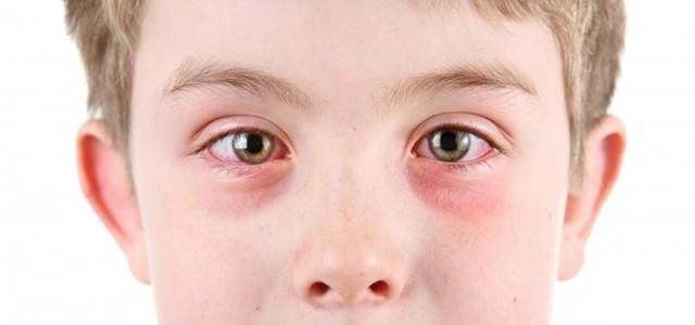 Гноится глаз у ребенка: причины, лечение