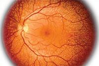 Сетчатка глаза - болезни и лечение, профилактика!