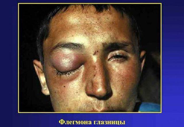 Воспаление слёзного канала или дакриоцистит