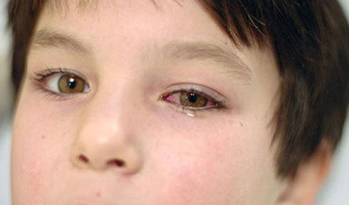 Мазь для глаз Тетрациклин - описание, инструкция по применению
