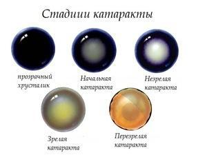 Лечение катаракты без операции лекарственными средствами