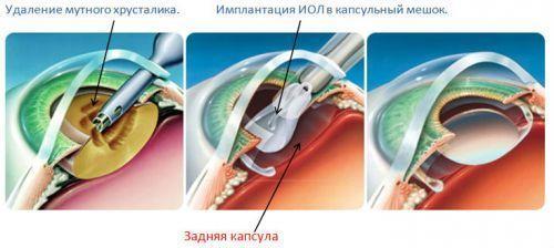 Вторичная катаракта после замены хрусталика: лечение, диагностика, симптоматика