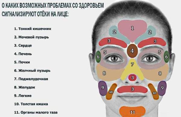 Опухоль век: эффективные способы лечения