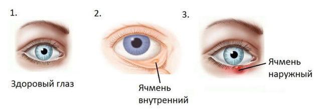 «Флоксал» - глазная мазь: показания, правила и особенности использования