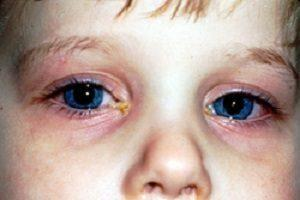 Почему у ребёнка красные глаза - причины и лечение!